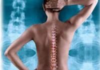 Osteochond2 остеоходроз лікування остеохонрозу, болі в спині, болить спина